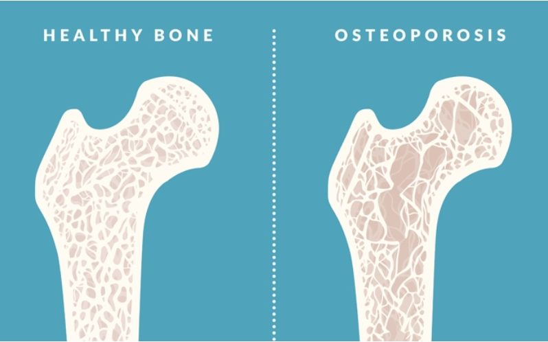 35++ Can osteoporosis make low wbc ideas